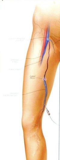 Endovenöse Lasertherapie